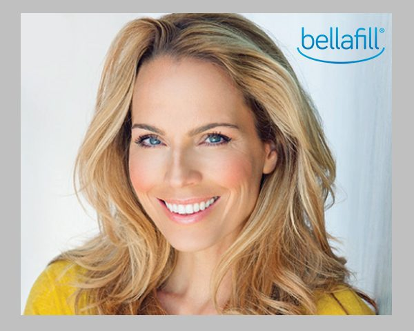 Introducing Bellafill, available from Dermassociates, Belleville, IL!