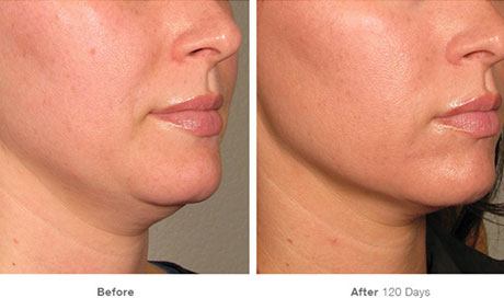 ultherapy-result
