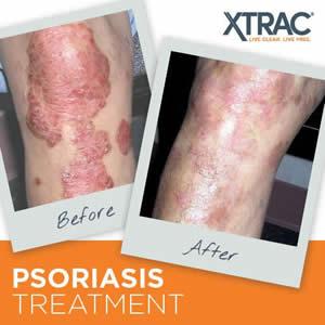 psoriasis-treatment