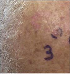 Skin Cancer Biopsy in Belleville, IL